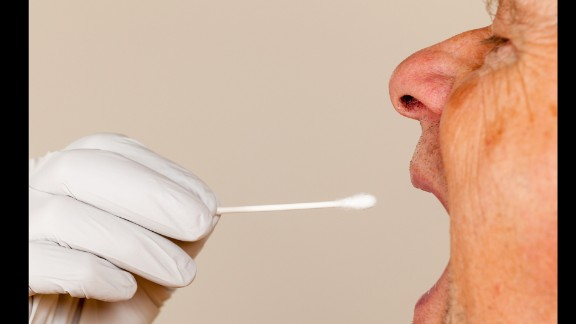 Researchers present a new study which show biomarkers in saliva may indicate early detection of Alzheimerâs disease.