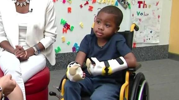 first bilateral child hand transplant kyw dnt_00000115.jpg