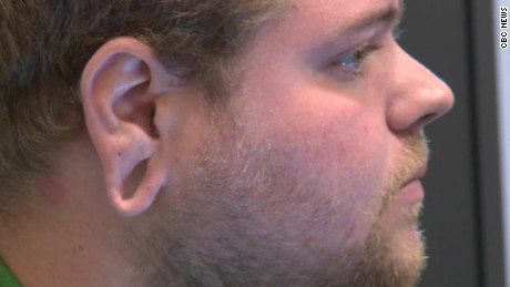 stretched earlobe regret cosmetic surgery pkg_00000904