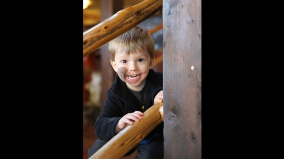 Tyler, 2, is very happy and energetic. He has a nevus, or a large birthmark. Tyler loves playing outside with his older brothers.