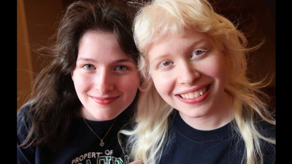 Arielle and Sarah are twins. Arielle has albinism.