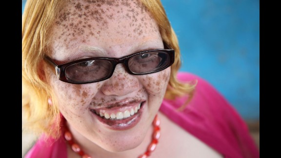 """Jayne Waithera, also featured in """"On Beauty"""" has albinism.  She has worked with Guidotti to create Positive Exposure Kenya, raising awareness and reducing the stigma associated with albinism. Waithera, recipient of the 2015 Nelson Mandela Washington Fellowship, recently met with U.S. President Barack Obama through the Young African Leaders Initiative."""
