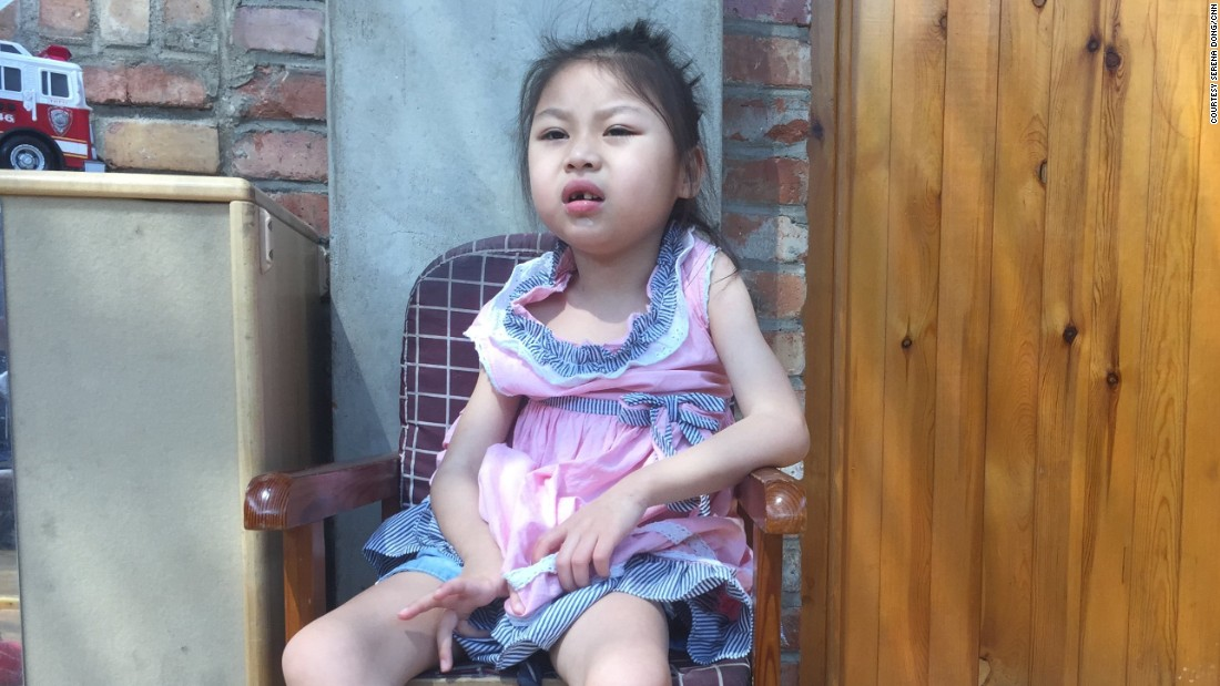 Hui Hui, born in 2009, used to have difficulty eating and was extremely skinny. Today nearly all of China's unwanted children have disabilities.