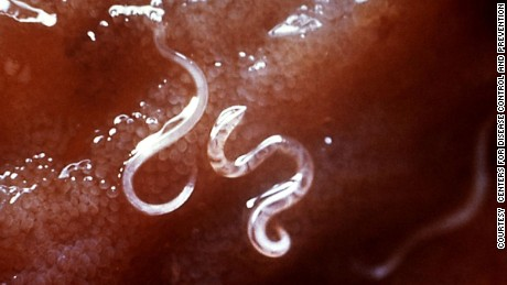 A type of hookworm, attached to the intestinal mucosa.