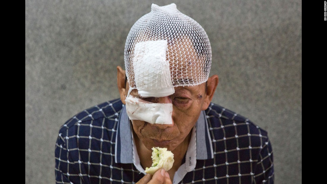 A bandaged man eats in a hospital in Tianjin.