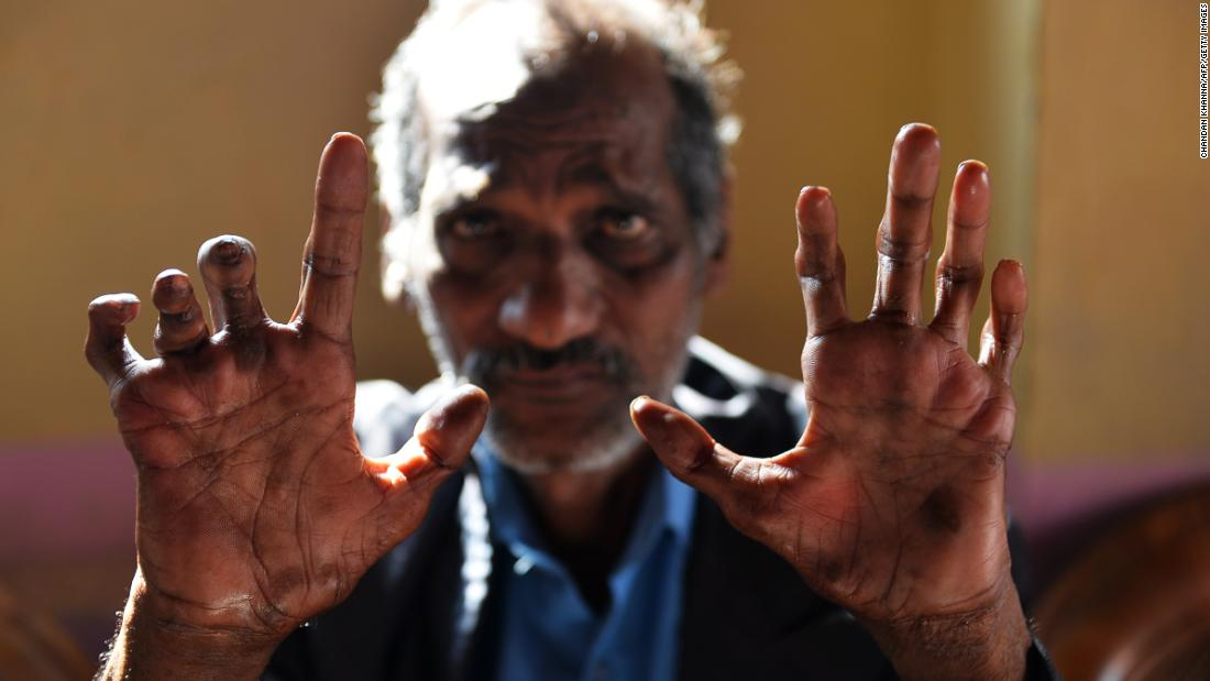 There were 216,000 global cases of leprosy, an ancient and disfiguring disease, in 2013.
