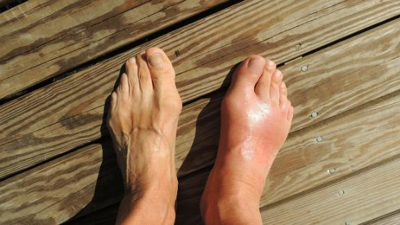 "Gout was once known as the ""disease of kings"" because of its links to excessive food and alcohol consumption. These days, unhealthy lifestyles are behind an increase in gout in developed countries."