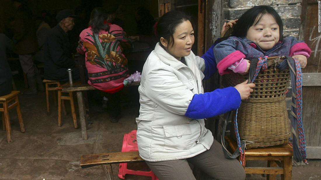 This 19-year-old girl in Neijiang, China, is being carried in a basket because she has rickets. Rickets is caused by a lack of vitamin D, which we get from sunlight. Experts believe rickets is making a comeback in developed countries because of the use of sunscreen and less time spent outdoors.