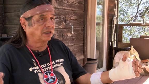 california man describes bear attack dnt_00011115.jpg