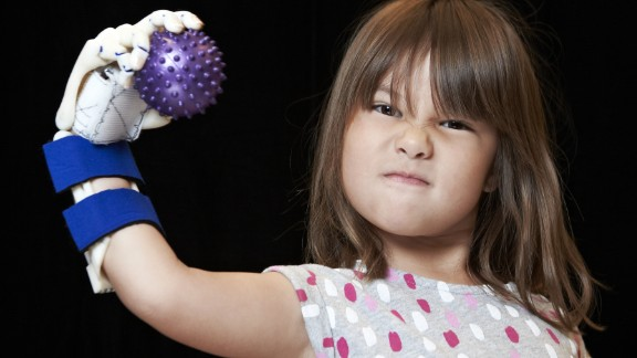 Hailey Dawson poses with her robohand in October 2014 at the University of Nevada, Las Vegas.
