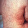 Rubella rash back