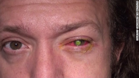 Chad Groeschen developed a dangerous bacterial infection in his left eye after sleeping in contact lenses.
