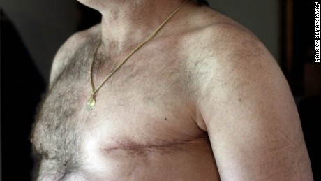 More men are opting to have preventative double mastectomies, according to a study.