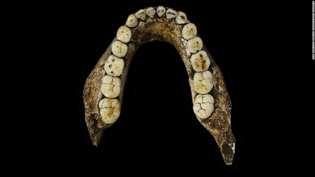Homo naledi's teeth are similar to those of the earliest-known members of our genus, scientists say.