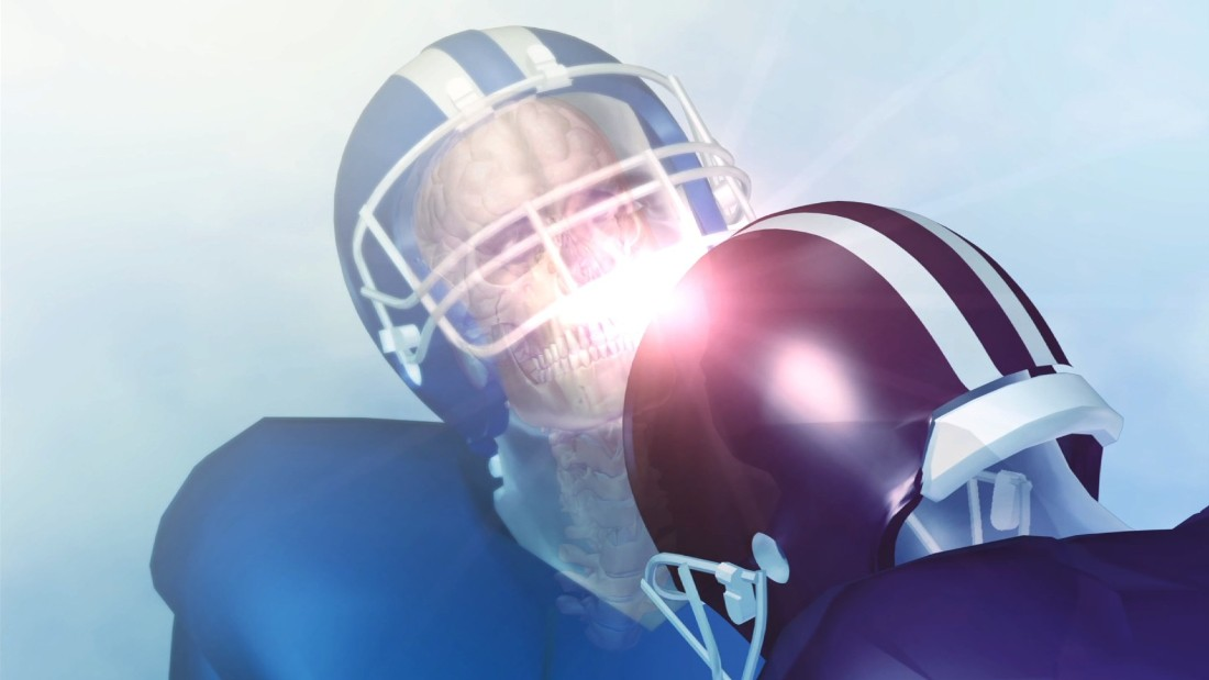 Many Ex Nfl Players Had Brain Disease Linked To Concussions Cnn
