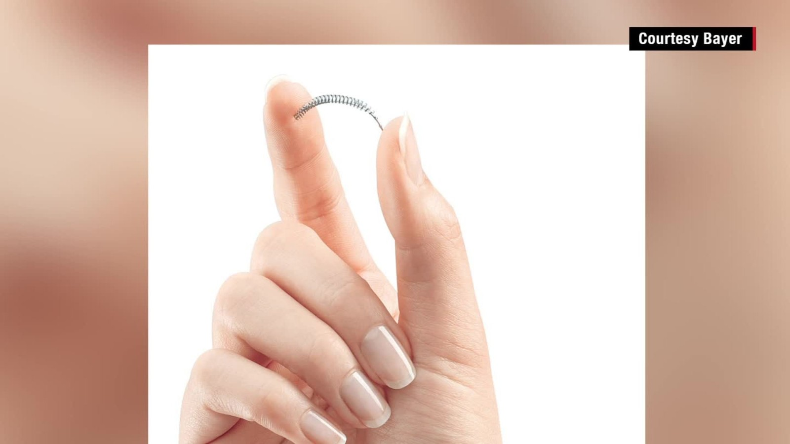 Why my experience with contraceptive Essure Procedure should be a warning tale to all Why my experience with contraceptive Essure Procedure should be a warning tale to all new picture