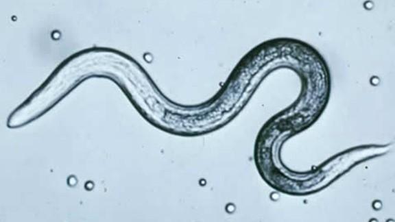 Toxocara larva