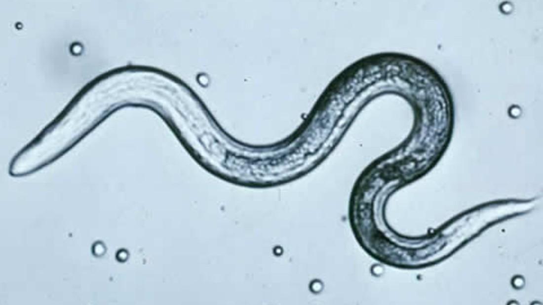 Parasites worm their way into back-to-school season