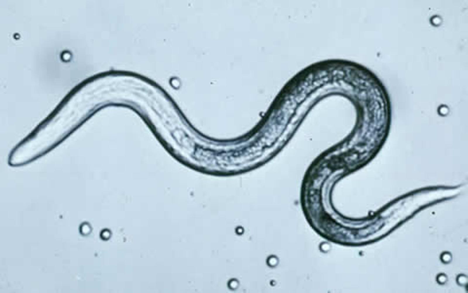 Pinworm paraziták gyermekeknél