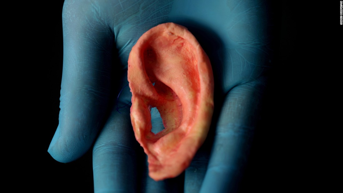 An ear mold made of nanocomposite material.