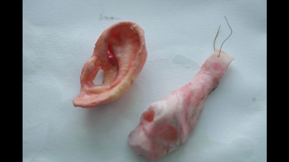 Nose and ear molds.