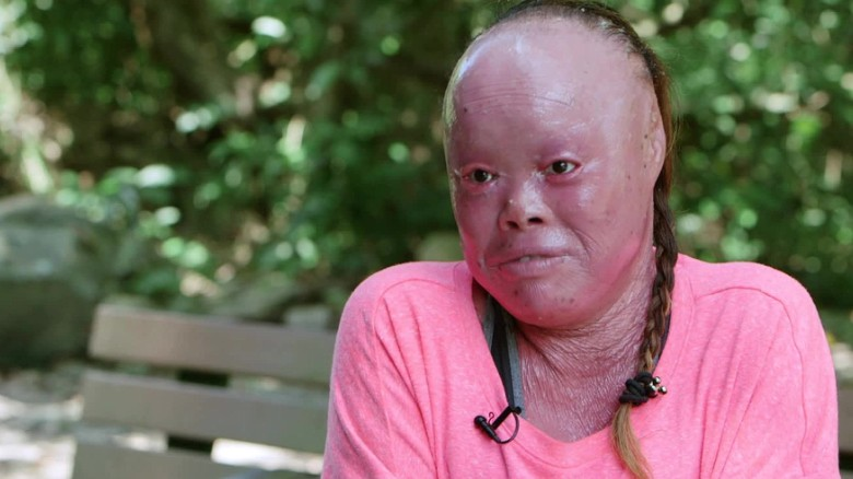 Mui Thomas uses rare skin condition to inspire