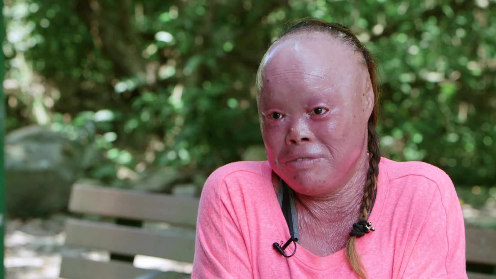 Mui thomas uses rare skin condition to inspire cnn video publicscrutiny Choice Image