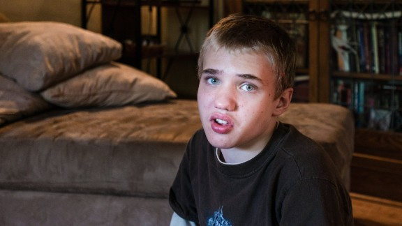 Alexander Brown was diagnosed with autism at 18 months. He's now 14.