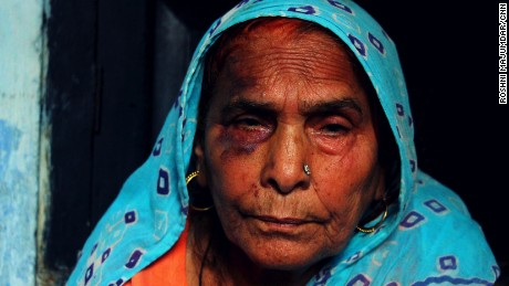 Asghari Begum sits broken and bruised after Monday's mob attack.