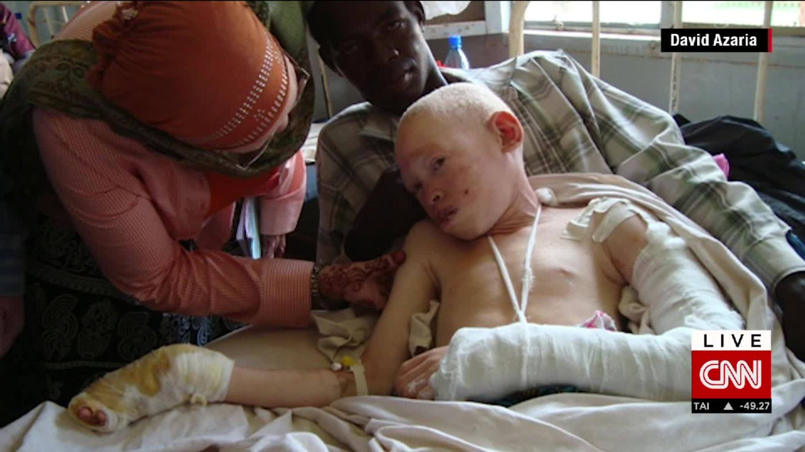 Albino teen attacked for her body parts