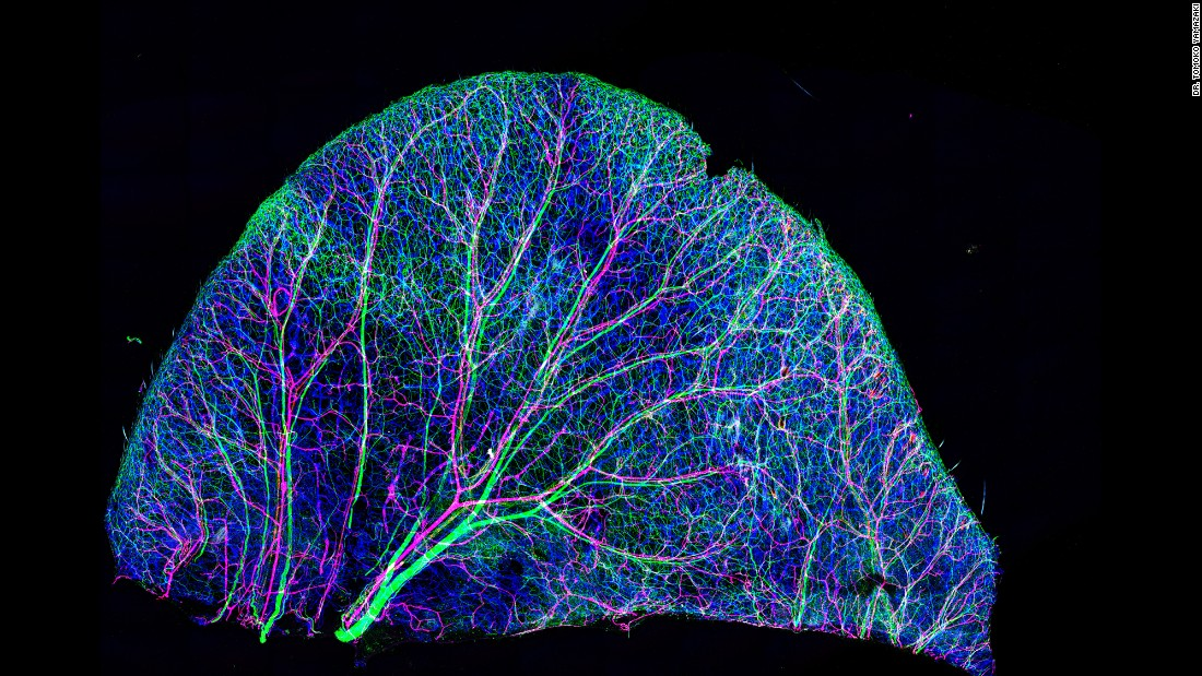 Nerves and blood vessels of a mouse's ear. Photo taken at the National Institutes of Health in Bethesda, Maryland.