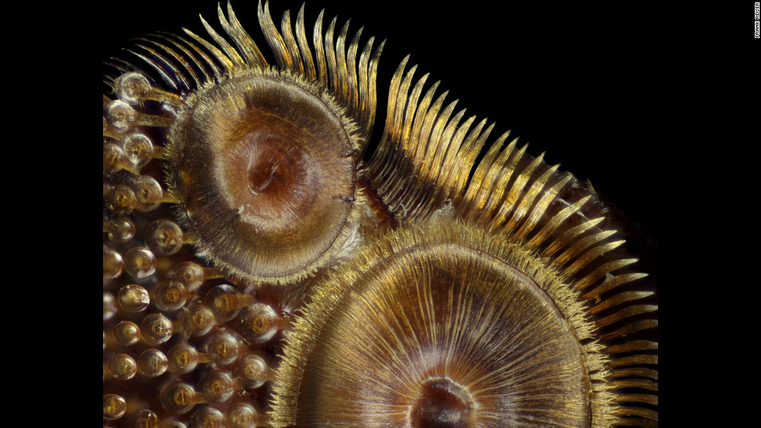 Photo of suction cups on a diving beetle (Dytiscus sp.) foreleg, taken at the Nassau Community College, Department of Biology in Garden City, New York.