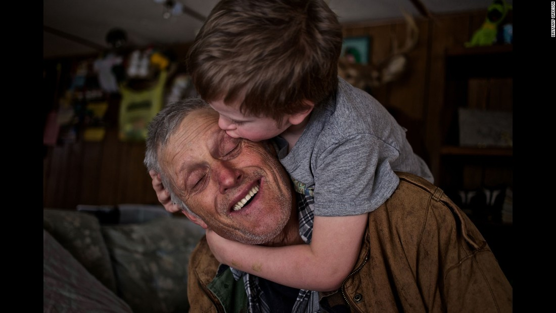 Skylor Cox, 3, jumps on his the back of his father, Faron, to give him little kisses at their home in Fordsville, Kentucky, in February 2014.