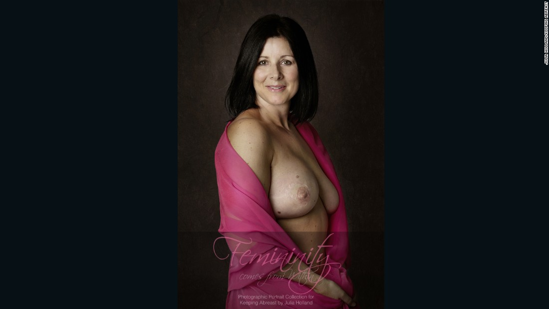 """I'm just stunned by the results. It's just beautiful,"" Anna Beckingham said, describing her portrait. She lost her right breast to cancer and had it reconstructed."