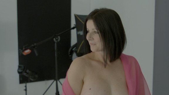 After cancer, Anna Beckingham exposed her reconstructed breast for an exhibition in London this week. Here, she poses for a portrait.