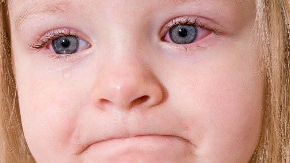 """Conjunctivitis, often called pink eye, can be caused by viruses, bacteria or allergens, <a href=""""http://www.cdc.gov/conjunctivitis/"""" target=""""_blank"""" target=""""_blank"""">according to the CDC</a>. It can cause redness of one or both eyes, tearing, discharge and itching. It might be treated with antibiotics."""