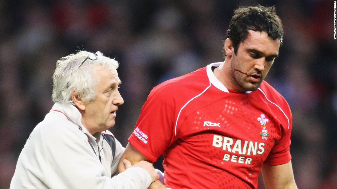 Thomas represented Wales 67 times, playing in two World Cups and winning the Six Nations twice. He noticed something was amiss last season when he started getting mild seizures during training. There were accompanied by memory loss and personality changes.