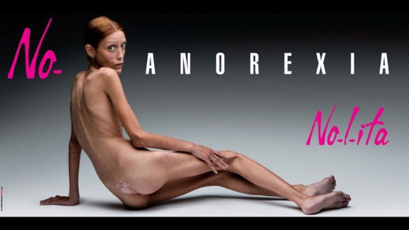 """Called """"No Anorexia"""", the 2007 campaign shot by Italian photographer Oliviero Toscani for fashion label Nolita, tackled an extremely challenging subject head on. Backed by the Italian ministry of health, the photo that launched during Milan fashion week and ran in newspapers and on billboards showed a young woman who had fallen victim to the disease. Despite the power behind the ad and the awareness it helped to raise within the fashion industry, the model, Isabelle Caro, tragically died in November 2010. She had made various television appearances and spoken openly about her decision to take part in the campaign. According to an article in the New York Times published after the model"""