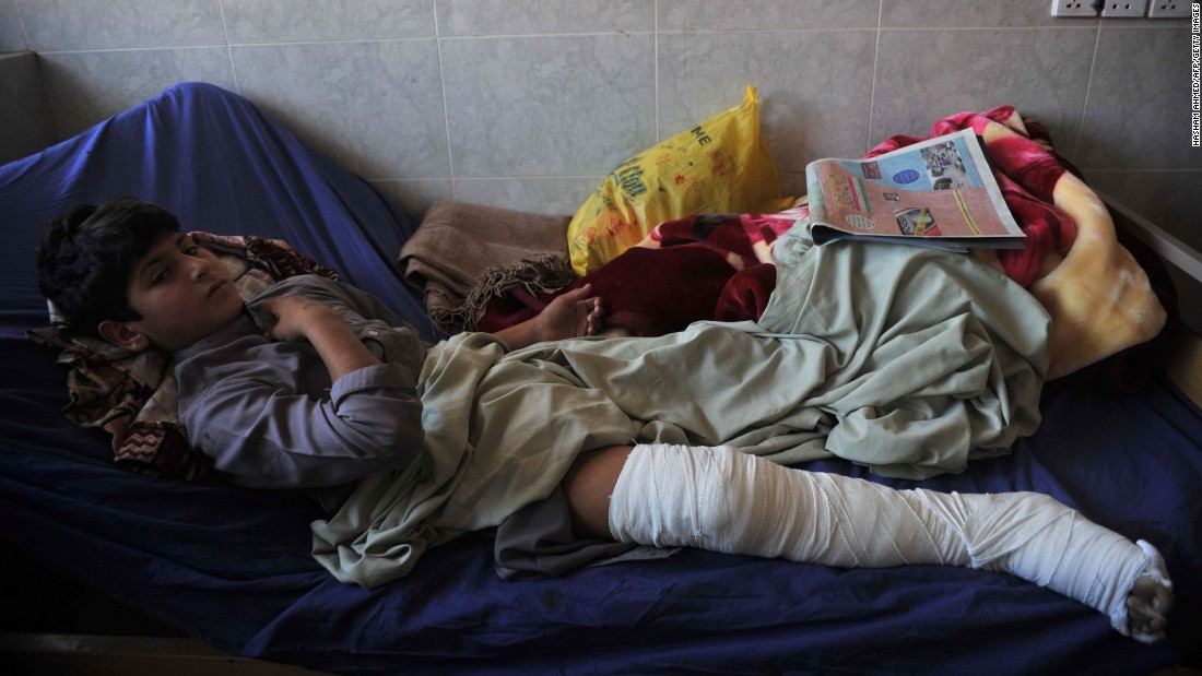 An injured boy rests at a hospital in Peshawar.