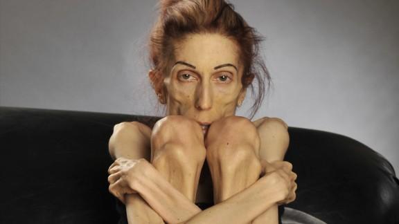 Rachael Farrokh anorexic woman transformation orig vstan_00000217.jpg
