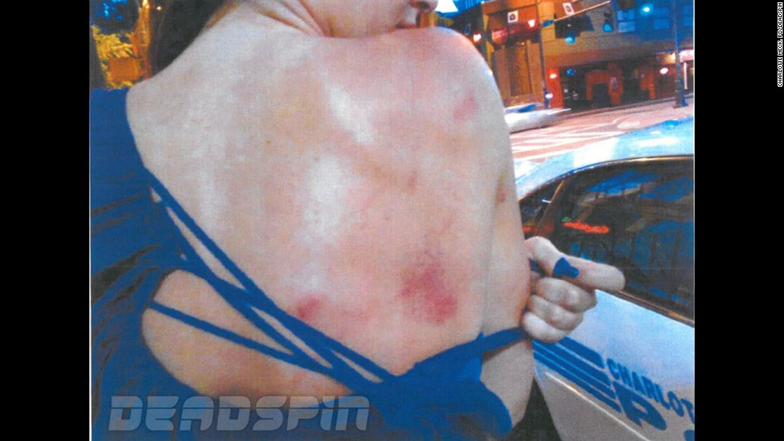 Deadspin posted these photos on Friday, saying they showed bruises on Nicole Holder after an incident at Greg Hardy's Charlotte, North Carolina, home.