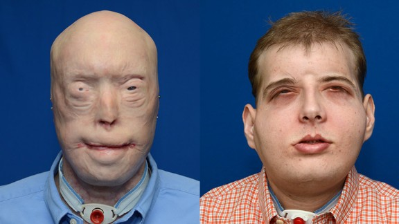 Patrick Hardison, 41, had face transplant surgery in August 2015. The surgery was performed by a plastic surgeon from New York University Langone Medical Center. Hardison, a volunteer firefighter, was injured 15 years ago.