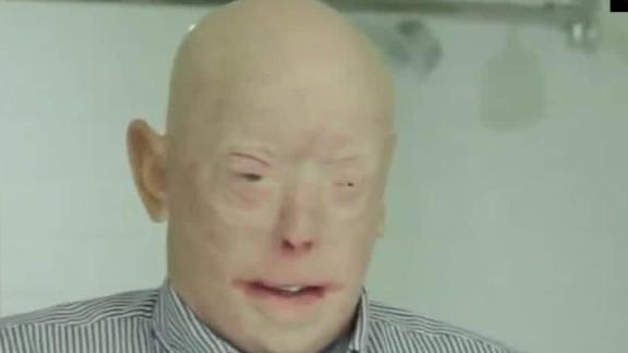 face transplant surgery patient nyu facial plastic orig_00000603.jpg