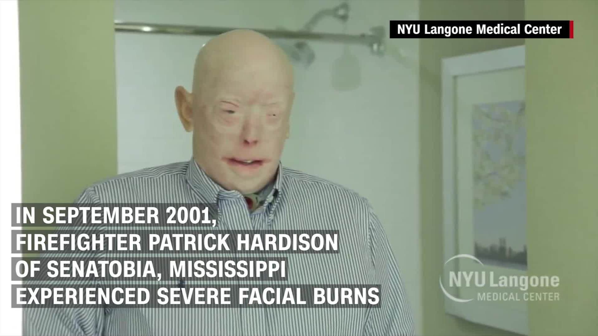 Man gets face transplant after suicide attempt - CNN Video