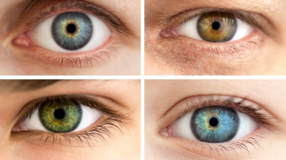 No two eyes have exactly the same iris patterns.