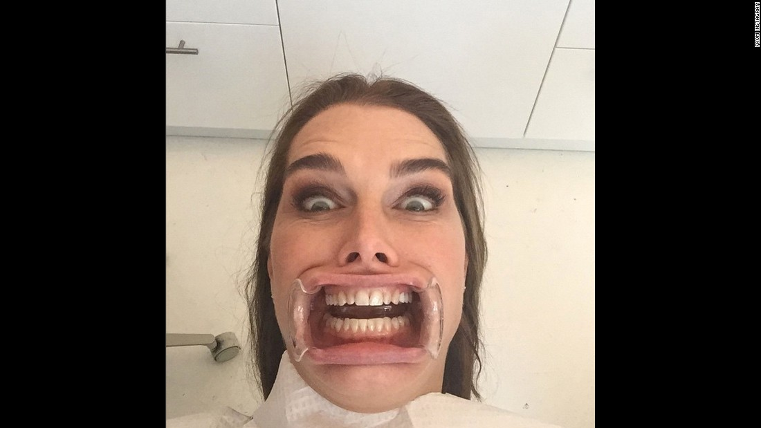 """My new head shot,"" joked actress Brooke Shields in this selfie she took at the dentist's office and <a href=""http://instagram.com/p/yNCV3HTdcO/?modal=true"" target=""_blank"">posted to Instagram</a> on Friday, January 23."