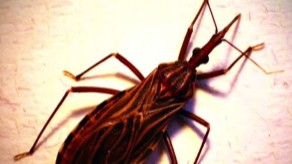 kissing bug Chagas united states pkg_00013319.jpg