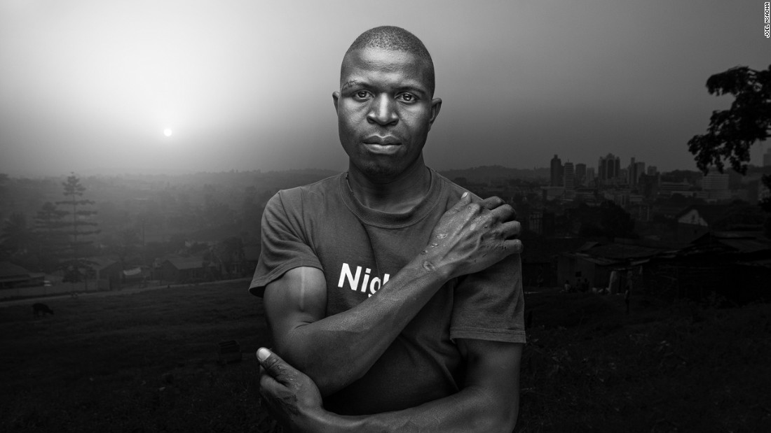 Joel Nsadha's portrait of  Zaidi Zaidi, a father of three from Bukoto, won him first place in the portrait category. Zaidi has been a boda-boda motorcycle taxi operator for eight years. The scars on his body are a result of the many accidents he has been in over the years.