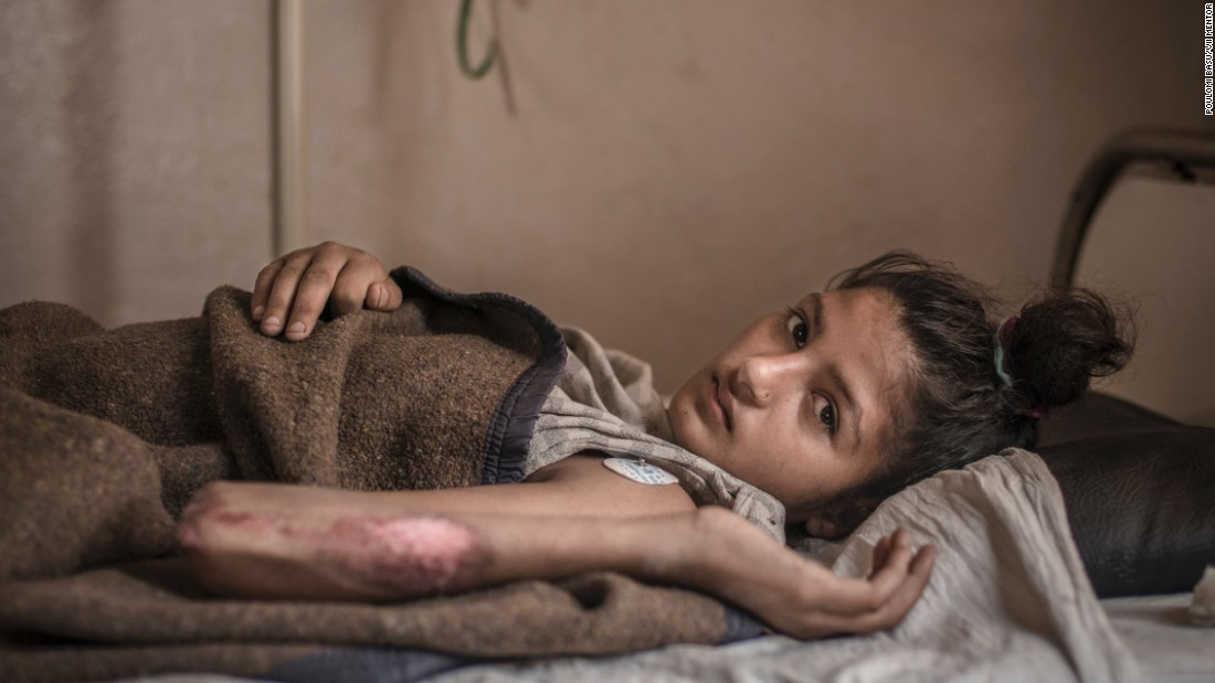 <strong>September 24:</strong> Rihana Shekh Dhafali rests in a hospital in Kathmandu, Nepal. She was allegedly set on fire over a dowry demand, according to the human rights organization INSEC. She lost the baby she was carrying at the time.