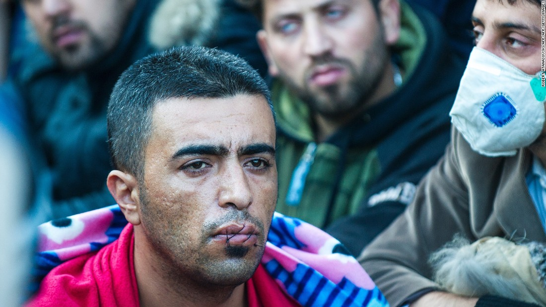 A man with his mouth sewn shut silently protests on the Greek-Macedonian border.